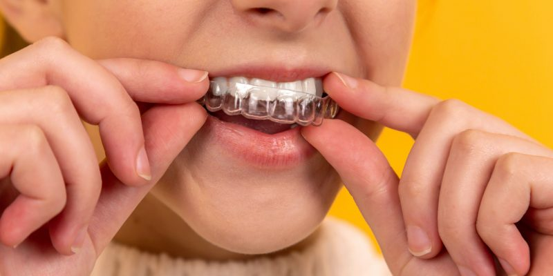 Teeth Invisalign